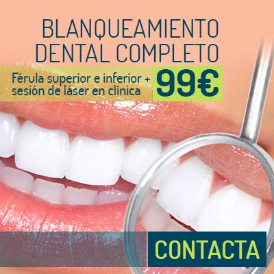 Blanqueamiento dental completo | Estética Dental