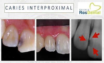 Odontología General | Caries Interproximal