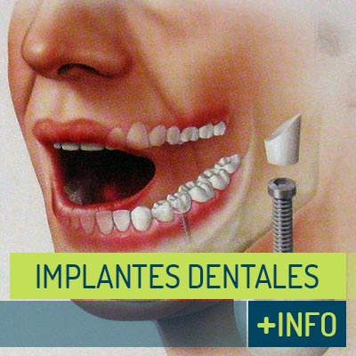 Tratamientos Clínica Dental | Implante Dental